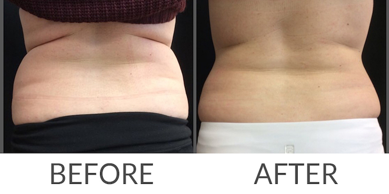 coolsculpting-before-after-7